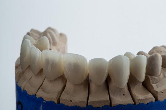 mock dental implants