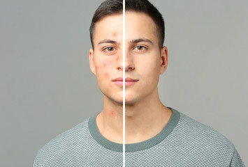 Portrait of young man with acne problem on grey background