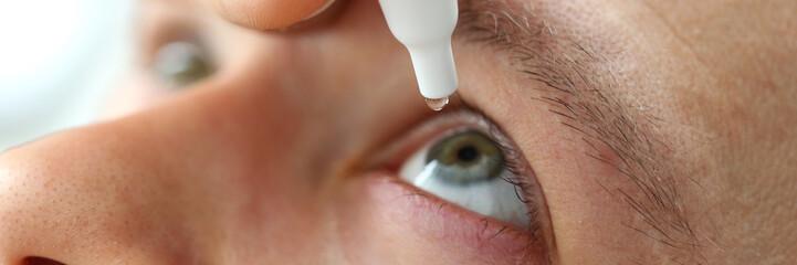 Man putting liquid drops in his eye solving vision problem closeup