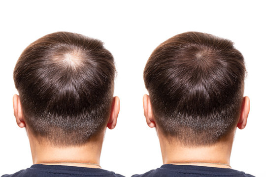 hair loss. men view from the back, comparison of hair before and after transplantation. bald head. baldness treatment. the medicine. thick healthy hair. head. people - problem hair, white background