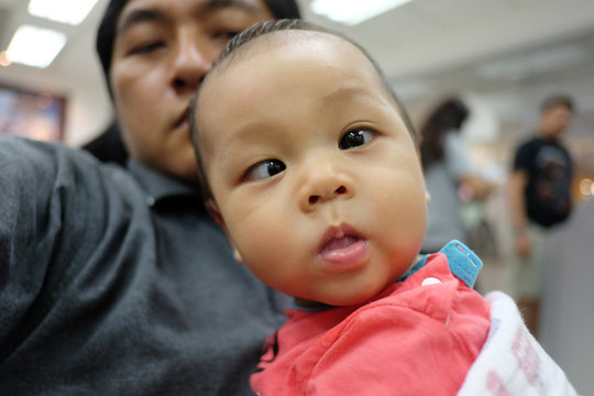 Asian boy with strabismus and dad.