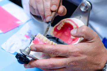 Close-up of denture manufacturing process.