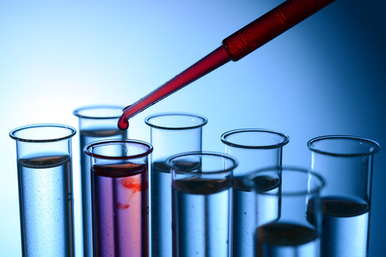 Test tubes in a laboratory for blood tests