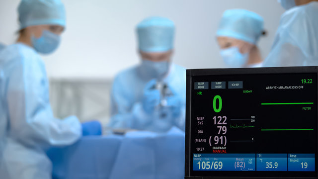 Death of patient during surgery, no heart rate on ecg monitor, negligence
