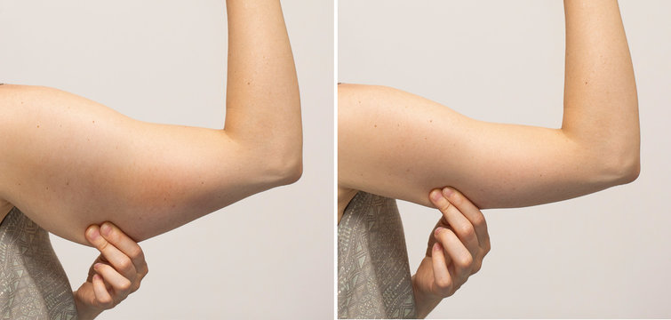 Flabby arm skin and slim hand comparison