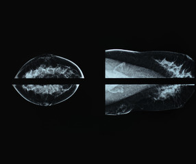 Mammography xray film image for breast cancer
