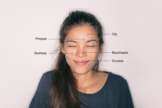Skin care problems asian woman with skincare conditions - oily forehead, dry lips, redness around nose, clogged pores blackheads. Winter beauty therapy.