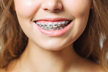 Orthodontic Treatment. Dental Care Concept. Beautiful Woman Healthy Smile close up. Closeup Ceramic and Metal Brackets on Teeth. Beautiful Female Smile with Braces.
