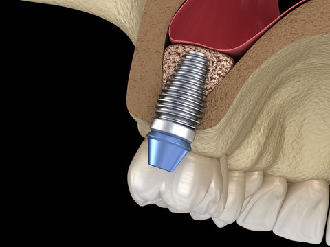 Sinus Lift Surgery - implant installation. 3D illustration