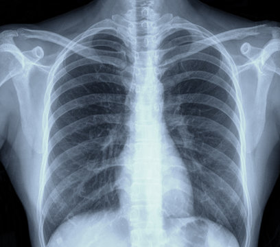 lung chest x-ray images
