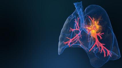 3d rendered illustration of lung cancer 3D illustration