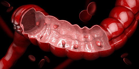 3d illustration of Colon polyps. Polyp in the intestine. isolated black..