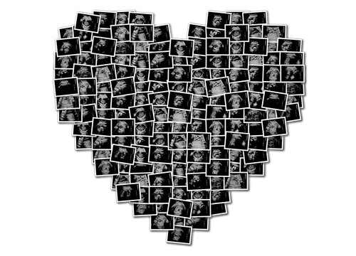 Heart shape of ultrasound pictures composition. Pregnancy concept