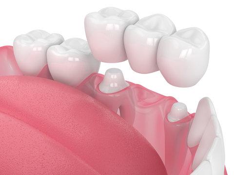 3d render of jaw with dental bridge