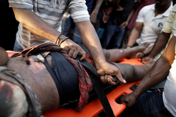 Men carry an injured woman hit by a truck taking part in the march crashed with attendees during a demonstration to demand the resignation of Haitian President Jovenel Moise, in the streets of Petion Ville, Port-au-Prince