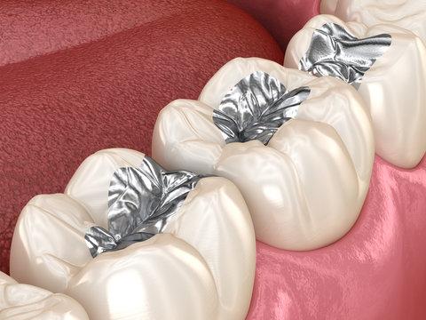 Amalgam restoration. Medically accurate 3D animation of dental concept