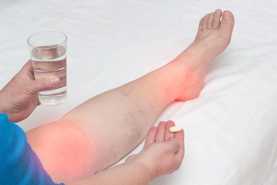 A woman whose leg pain in the joints holds a pill and a glass of water. The concept of treatment of arthritis and arthrosis with anti-inflammatory drugs, vitamins and chondroprotectors