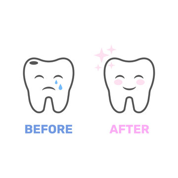 Image of a healthy and bad tooth in the form of animation. Picture for dental sites, for dental clinics and related applications. Vector illustration. EPS 10