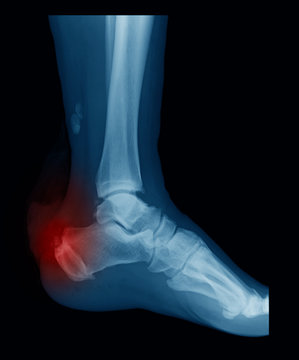 X-ray image of Lateral calcaneus (heel) showing achilles tendon rupture and heel fracture