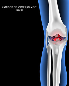 Medical orthopedic abstract background. Treatment for orthopedics traumatology of knee bones and joints injury and ACL injury. Medical presentation, hospital. Vector illustration