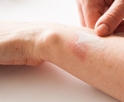 Treatment of burns on female hand on white