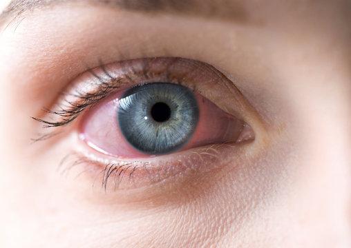 Macro of red woman eye. Bloodshot eye - conjunctivitis or allergic reaction.