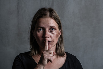 Young beaten up woman looking at camera and holding finger on mouth. Empty space for text
