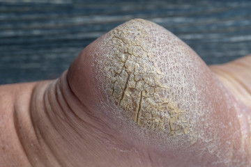Chapped human foot heel, crack heel pictures closeup. Dry and cracked skin on the heel