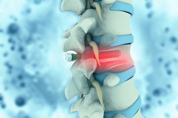 spinal column with implant. screw placement. 3d illustration