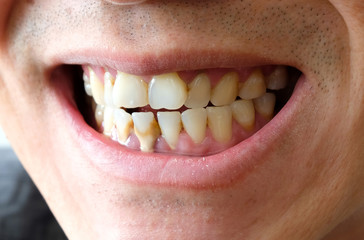Tooth's a man smoking bad. Man smokes a cigarettes have tooth decay and calculus on teeth, So we should be care dental with the hygiene.