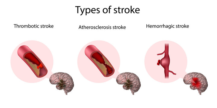 Types of stroke. Thrombotic, Atherosclerosis, Hemorrhagic stroke. Medical illustration.