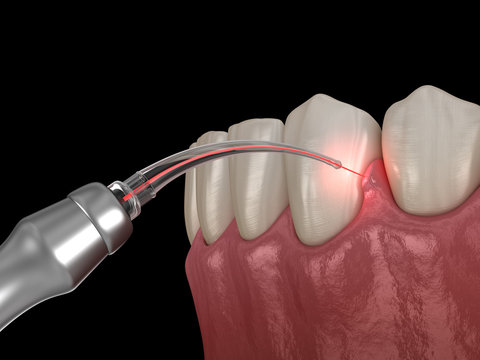 Gum correction surgery with laser.  Medically accurate tooth 3D illustration