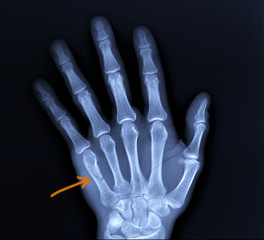 on the x-ray of the hand fracture of the fifth metacarpal bone, traumatology, medical diagnosis