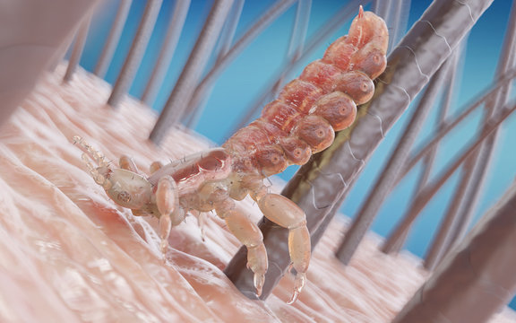 3d rendered medically accurate illustration of a head louse