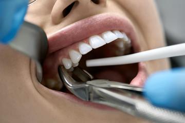 Pretty woman's teeth treatment in dental clinic