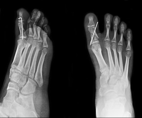 Foot x-ray image for use in treating toe fractures.