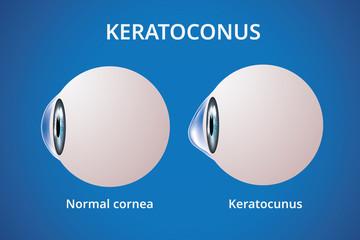 Eye cornea and keratoconus, eye disorder, medical vector