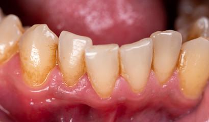 Lower teeth with plaque around them, closeup