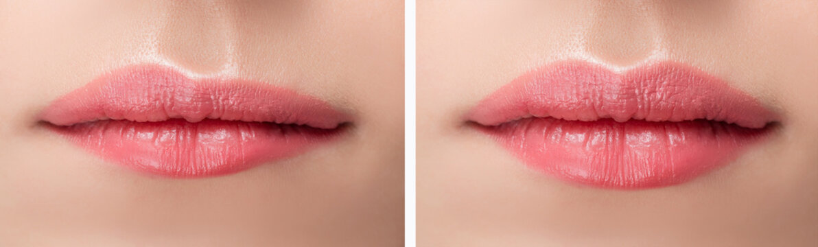 Before and after lips filler injections. Beauty plastic augmentation procedure