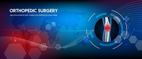 Medical orthopedic abstract background. Treatment for orthopedics traumatology of knee bones and joints injury. Medical presentation, hospital. Vector illustration