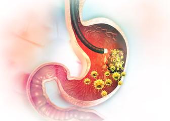 Stomach cancer. 3d illustration ..