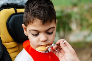 niño con  discapacidad comiendo en su silla de ruedas en un parque. foto primer plano.
