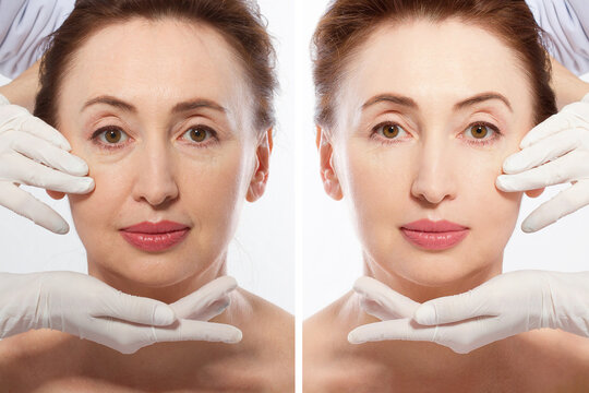 Close up middle age woman macro face before after collagen injection. Face lifting, anti aging concept. Plastic surgery, cosmetic facelift with bone contouring. Wrinkled face before-after treatment