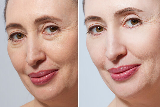 Middle age close up woman happy face before after cosmetic procedures. Skin care for wrinkled face. Before-after anti-aging facelift treatment. Facial skincare and contouring. Beauty
