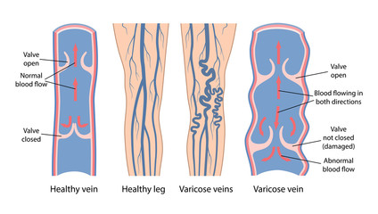 Varicose veins. Image of healthy and diseased legs. A longitudinal section of a vein with a description of the main parts. Vector illustration in flat style