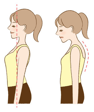 Bad posture makes my spine rounded