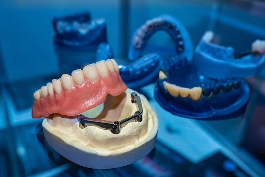 Dentistry. Models of removable dentures. Prosthetics of the dental cavity. Dentures on the jaw. The manufacture of dental prostheses. Prosthetist. Dental technician.