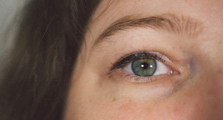 Woman with under eye bag. Puffy eye of girl showing eyes bags. Woman's eye close-up.