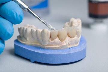close up of work on denture parts in a dental laboratory