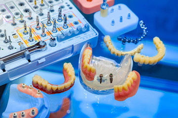 Workplace dental technician. Dentistry. Tools for making dentures. Clasp prostheses. Removable denture. Correction of bite. Prosthetics. Orthodontics. Dental health care.
